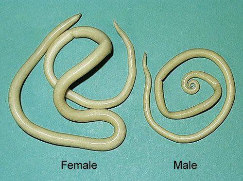 Ascaris lumbricoides. Gusanos se retuercen en el estómago de un hombre. Captados por ultrasonido.