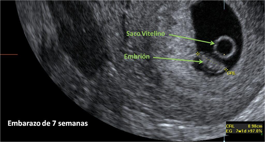 embarazo saco vitelino sin embrión